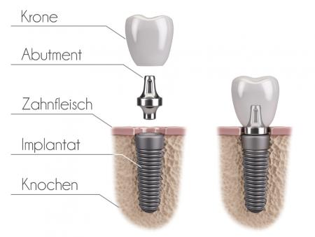 bigstock-Tooth-human-implant-117269126