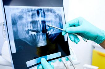 Roentgenbild von Kieferchirurgen analysiert
