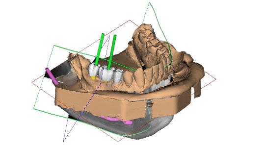 Zwei Implantate in dreidimensionales Kiefer-Modell eingeschraubt