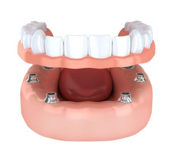 Modell 6 Zahnimplantate tragen festen Zahnersatz